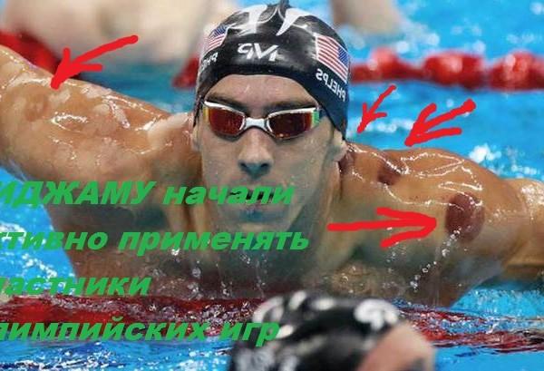 Хиджама для спортсменов и чемпионов