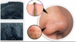 Черные точки на лице: причина появления, способы избавления, профилактика